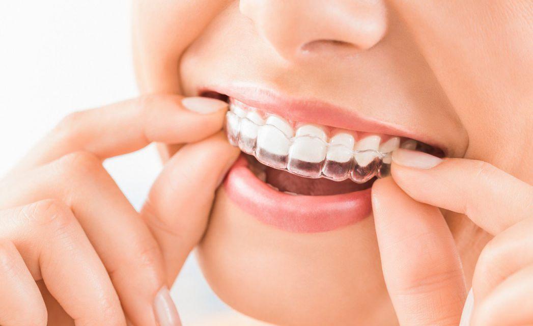 benefits-of-braces